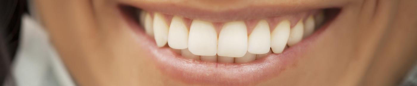 teeth bonding homebush sydney