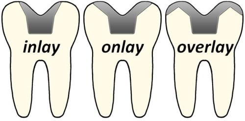 inlay-onlay-overlay